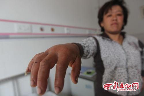 村民受雷击后,右手至今仍红肿着 记者 王强 摄