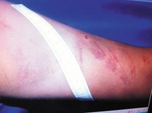 小敏手臂上的伤